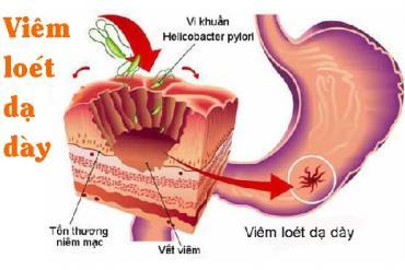 Cữ thuốc nào quan trọng trong bệnh viêm loét dạ dày?